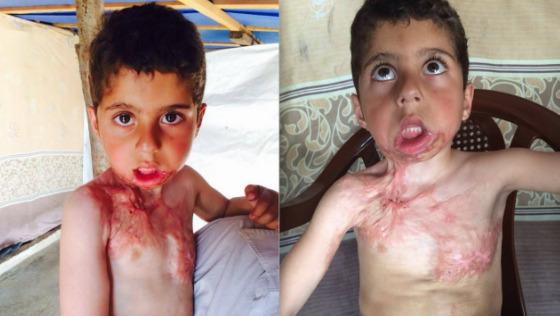Zdjęcie opisu zbiórki Dramat syryjskiego chłopca Azema