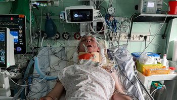 Zbiórka Rehabilitacja Kuby po wypadku - miniaturka zdjęcia