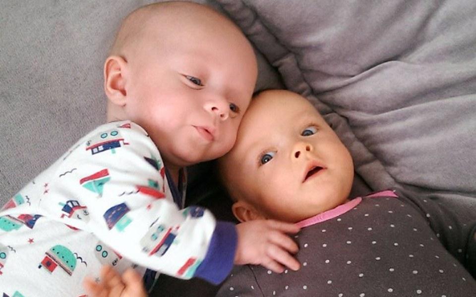 Zbiórka Bliźnięta- dwie różne choroby - zdjęcie główne