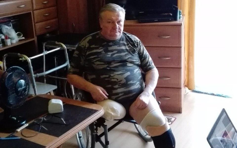 Zbiórka Potrzebne protezy obu nóg - zdjęcie główne