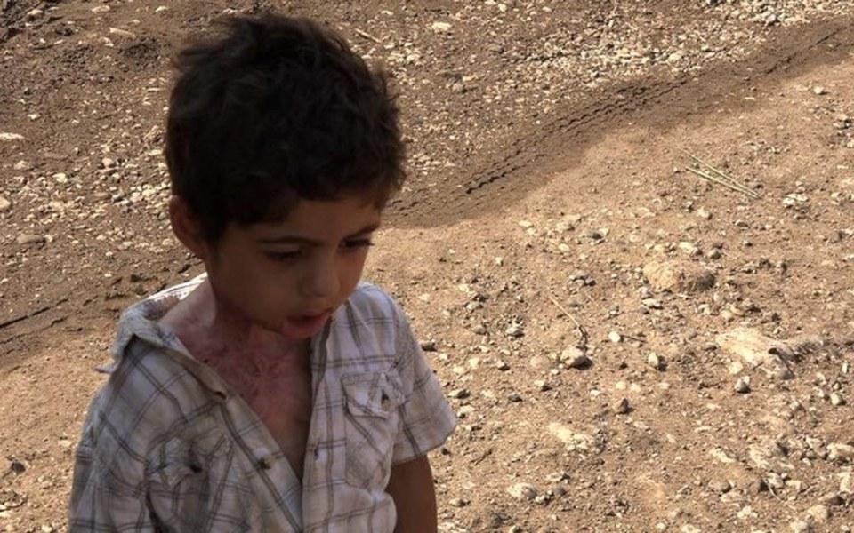 Zbiórka Dramat syryjskiego chłopca Azema - zdjęcie główne