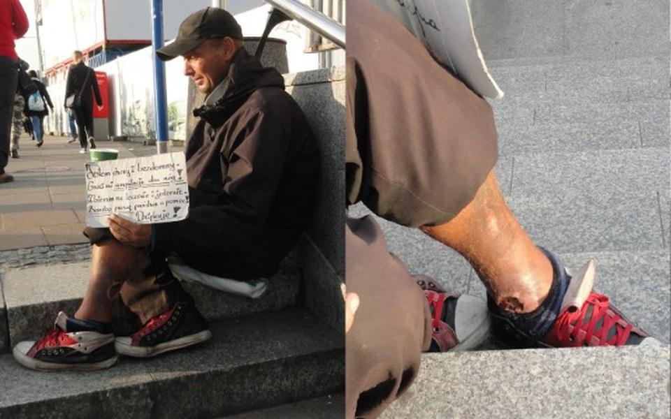Zbiórka Bartkowi zagraża amputacja nóg! - zdjęcie główne