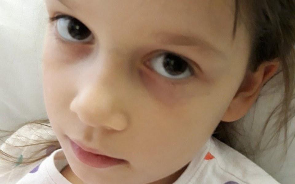 Zbiórka Alicja walczy z białaczką - zdjęcie główne