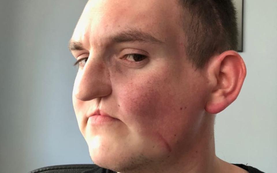 Zbiórka Rekonstrukcja twarzy - zdjęcie główne