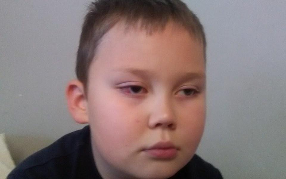 Zbiórka Operacja oka dla KRZYSIA - zdjęcie główne