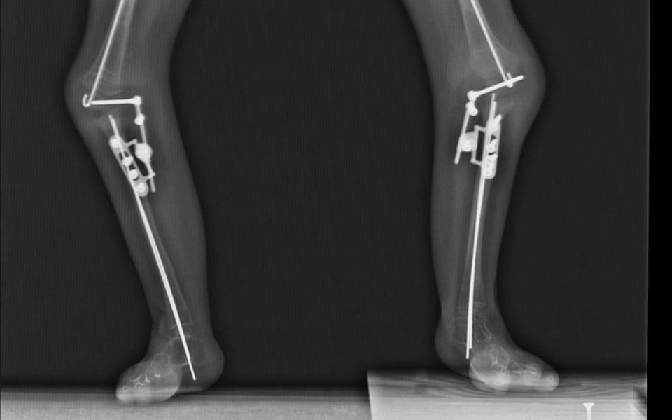 Zbiórka Mieć nogi do nieba - zdjęcie główne