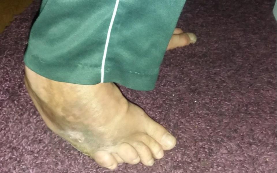 Zbiórka Proszę, uratujcie moją nogę! - zdjęcie główne
